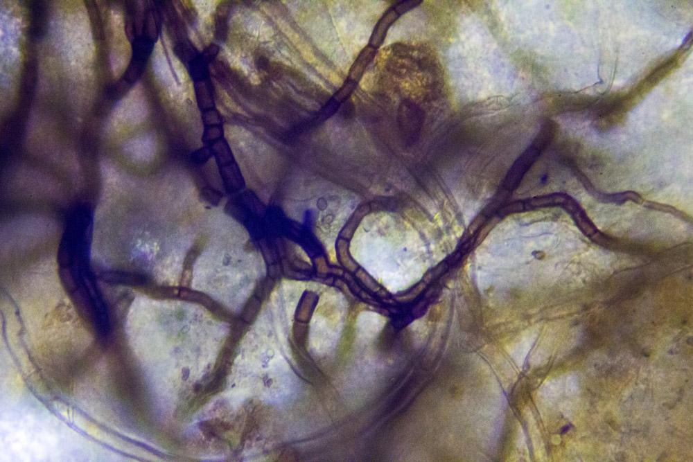 Micelio al microscopio, Courtesy Claire Pentecost